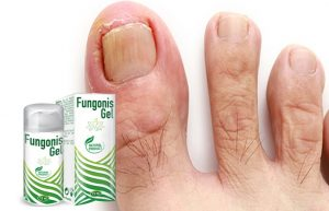 Fungonis-Gel-gel-ingrediente-compoziţie-cum-să-aplici-cum-functioneazã-efecte-secundare-contraindicații-prospect