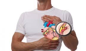 simptomele-si-tratamentul-aterosclerozei